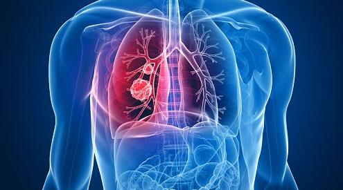 肝癌应该做什么?
