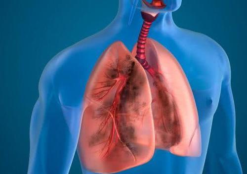 肺癌发病率年轻化,该如何预防?疫情时期,如何保护自己?