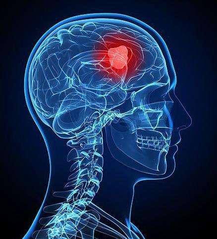 PETCT可以检查出脑瘤吗?