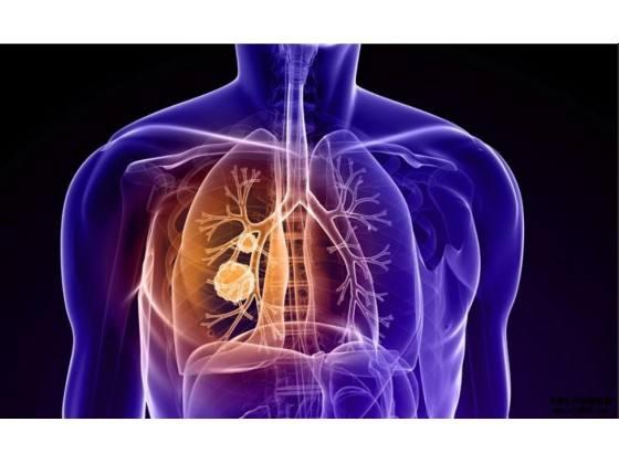 petct检查肺癌有什么重要性?