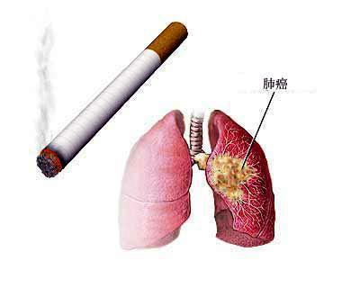 petct扫描肺癌有哪些临床价值