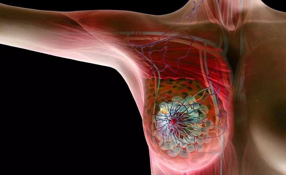 PETCT检查乳腺癌如何?