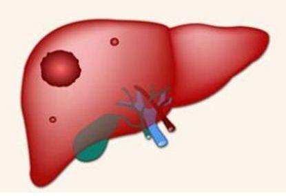 肝癌早期会传染给人吗?
