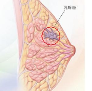 PETCT对于检查乳腺癌怎么样?