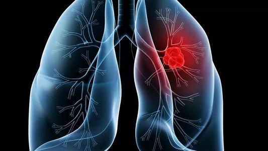 哪些症状意味着肺癌的发生?