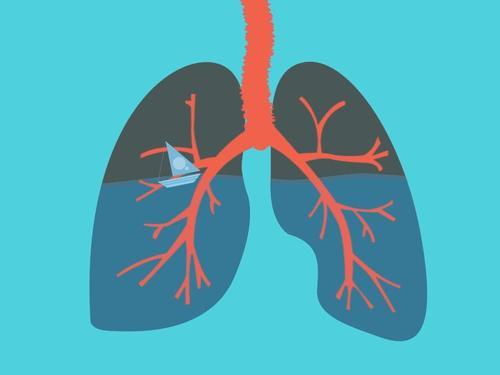 肺癌的6大发病原因