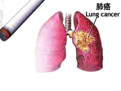 为什么说吸烟是造成肺癌的首要原因