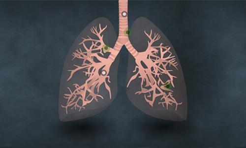 如何鉴别小细胞肺癌?