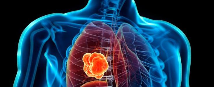 几种预防肺癌的方法