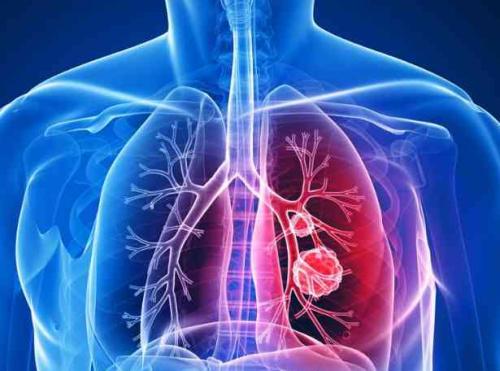 肺癌的术前准备和术后护理