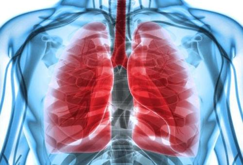肺癌的常见症状有哪些?