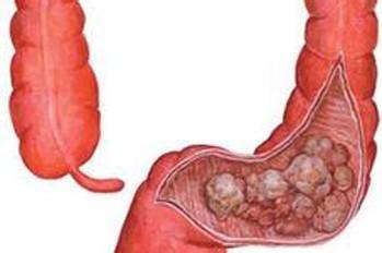 盘点结肠癌的治疗方法