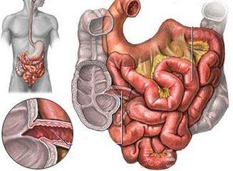 结肠癌晚期的治疗方法有哪些?