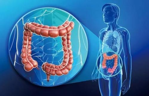 预防直肠癌的六个措施