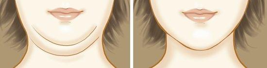 小颜术对比传统吸脂 谁才更好的能去除双下巴?