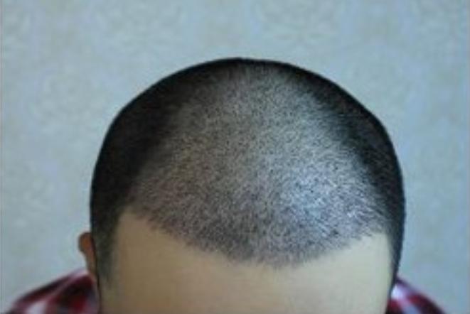 植发挂哪个科室 植发是属于医院哪个科室?