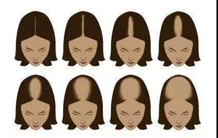 郑爽同款头发稀疏怎么办?从头发种植蓬松头发入手