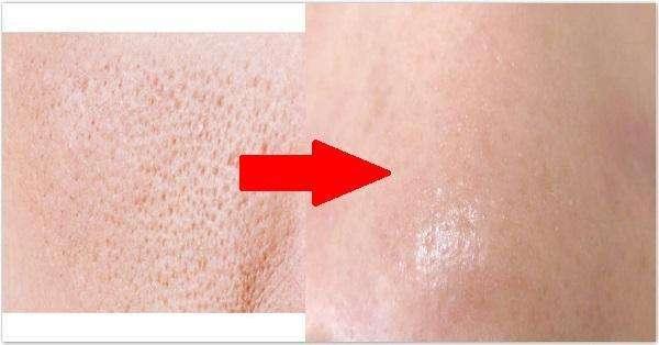 激光嫩肤 激光治疗脸部老大难问题 毛孔粗大有一套!