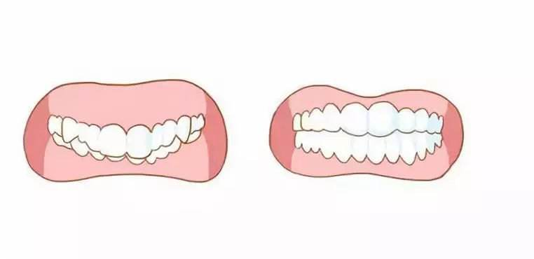 成人牙齿矫正保持器有哪些?分别有什么好坏?