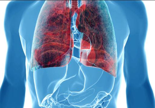为什么肺癌一发现就是晚期?肺癌能在早期发现吗?