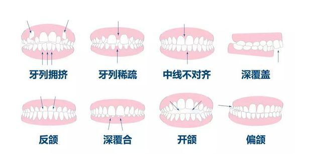 矫正牙齿有什么好处?哪些情况要矫正牙齿?