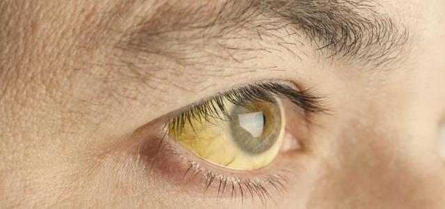 眼睛如果出现以下症状,小心是肝癌!
