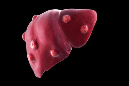 出现哪些情况表明可能已经得了肝癌了?