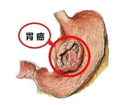 引起胃癌的内因和外因是什么?