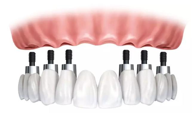 种植牙过程是什么样的?整个种植牙完成时间需要多久?