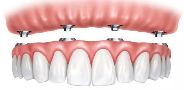 种植全口牙需要几个种植体?全口种植牙前需要哪些步骤呢?