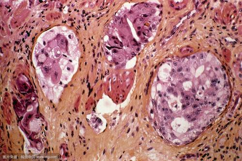 如何提高胃癌晚期生存率?术后护理很重要