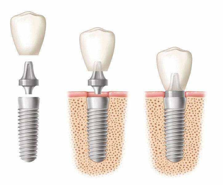 种植牙价格为什么这么贵?种植牙贵在哪里?