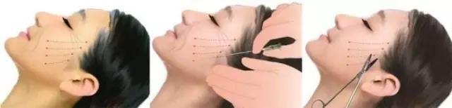 面部线 雕提拉紧致不假,但线 雕其实有两种规格你们知道吗?