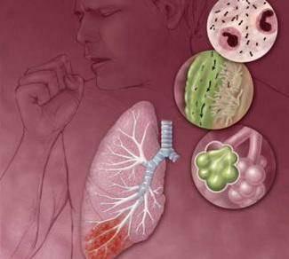 肺炎久治不愈会变成肺癌吗?