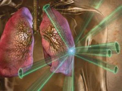 肺癌患者治疗后需要注意哪些后遗症?