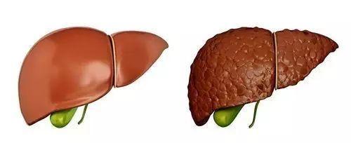 肝癌的危害有哪些表现?