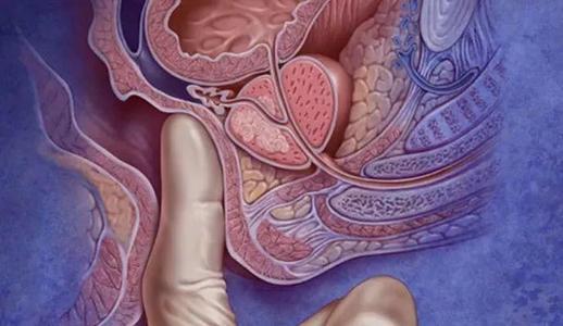 怀疑是肠癌时需要做哪些检查?哪个检查方法简单有效?