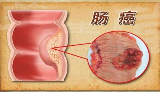 大肠癌的早期症状有哪些?出现这几个情况要警惕
