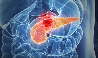 胰腺癌被称为癌中之 王的原因?