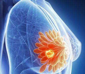 乳腺自检方法有哪些需要注意的地方?
