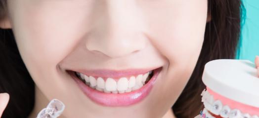口腔微创美容疗法,让牙齿美白多了一个选择