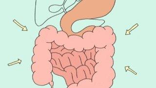 关于结肠癌你不得不了解的4个常识!