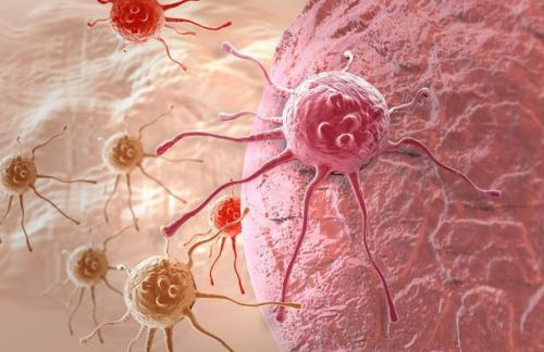 胃癌常见的转移途径有哪些?