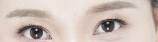 做专业割双眼皮手术前要做好哪些准备?费用贵吗?