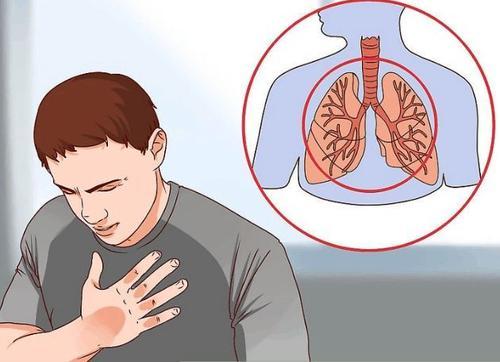 肺癌来临时,身体会出现的几个信号
