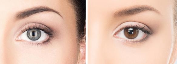 眉毛整形手术术前、术后都要注意些什么呢?