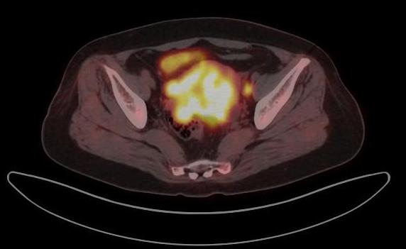 petct 检 查 宫 颈 癌 淋 巴 转 移