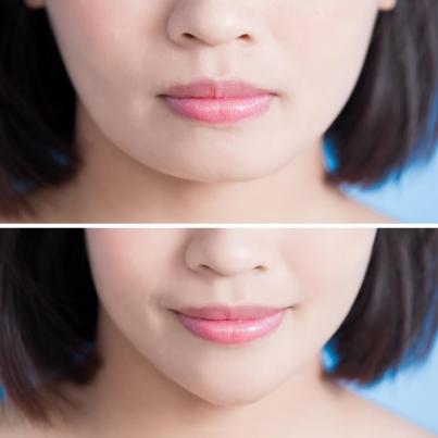丰唇的方法都有哪些?不同的方法都是些什么原理?