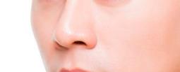 歪鼻矫正术的有哪些过程?这些过程的原理又是啥?