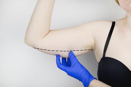 手臂吸脂多久消肿?吸脂瘦手臂术后会反弹吗?